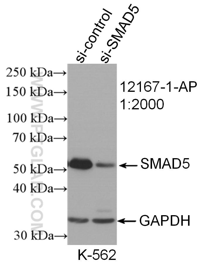 WB analysis of K-562 using 12167-1-AP