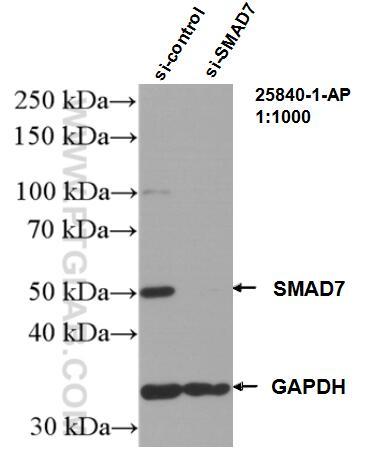 WB analysis of HepG2 using 25840-1-AP