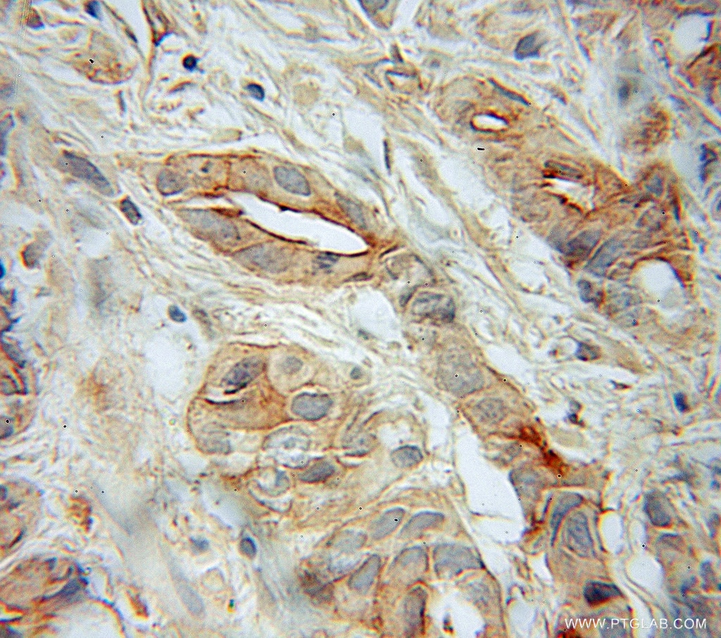 IHC staining of human prostate cancer using 10825-1-AP
