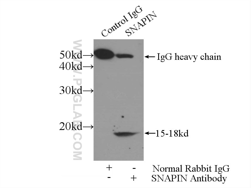 IP experiment of mouse brain using 10055-1-AP