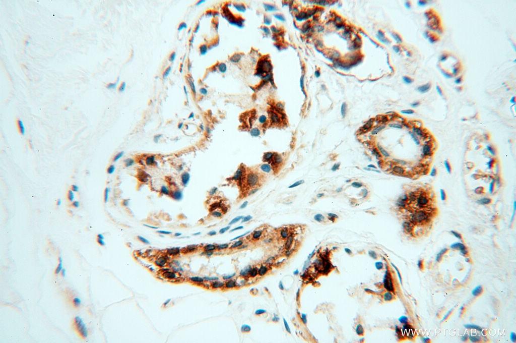 10842-1-AP;human skin tissue