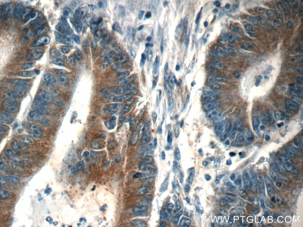 IHC staining of human colon cancer using 60265-1-Ig