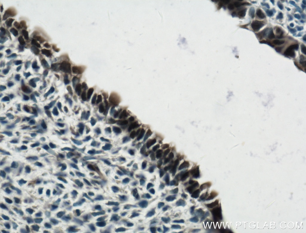 IHC staining of mouse embryo using 20118-1-AP