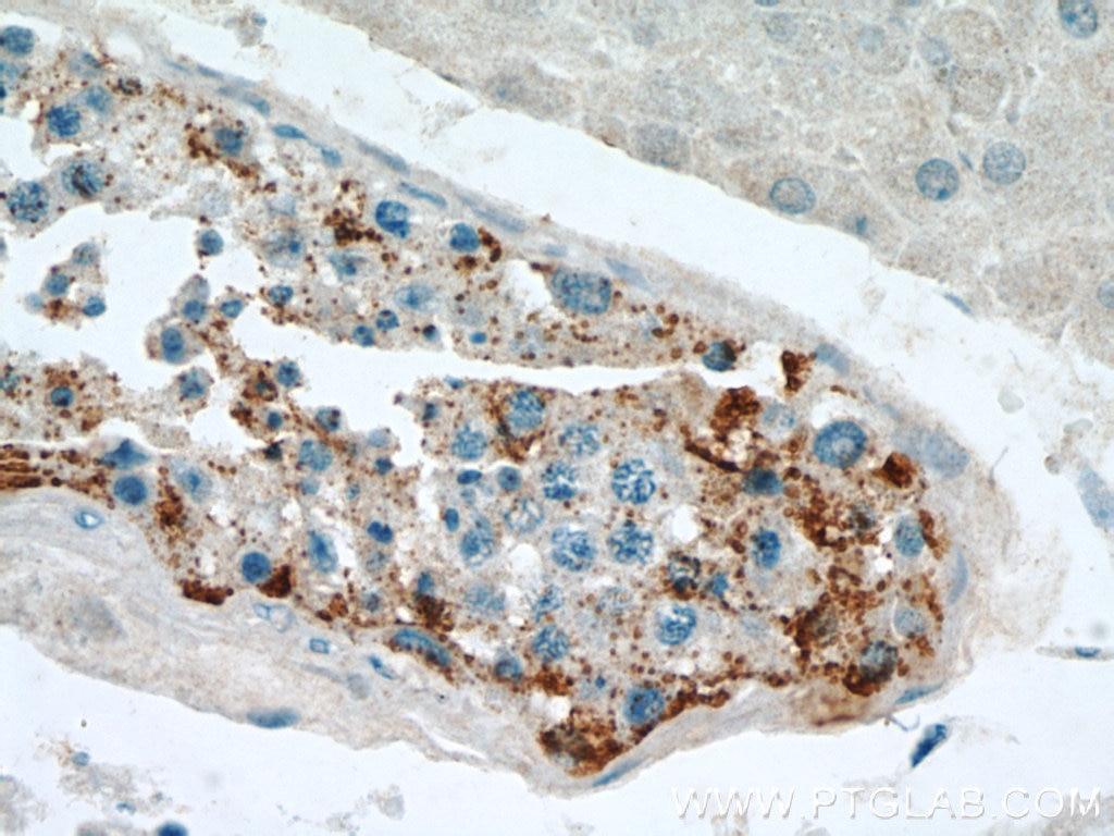 IHC staining of human testis using 13255-1-AP