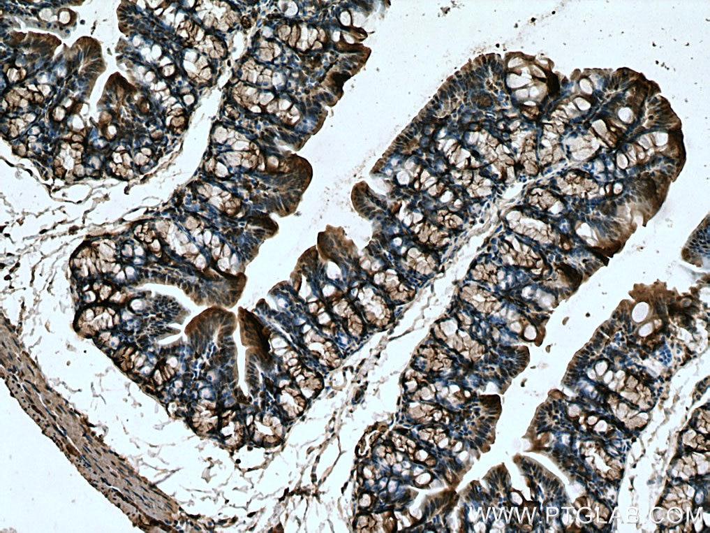 IHC staining of mouse colon using 13128-1-AP