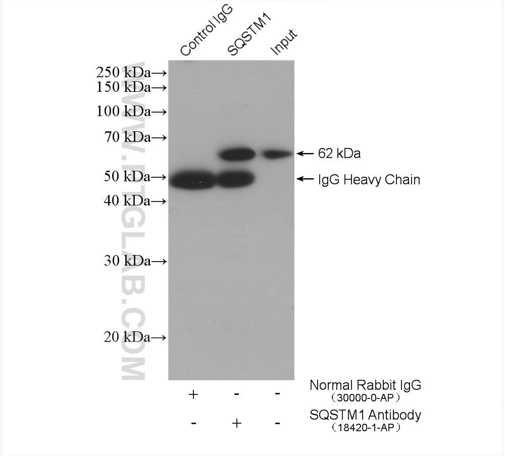 IP experiment of HEK-293 using 18420-1-AP