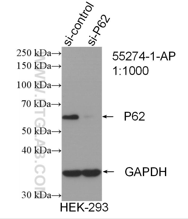 P62sqstm1 Antibody 55274 1 Ap Proteintech