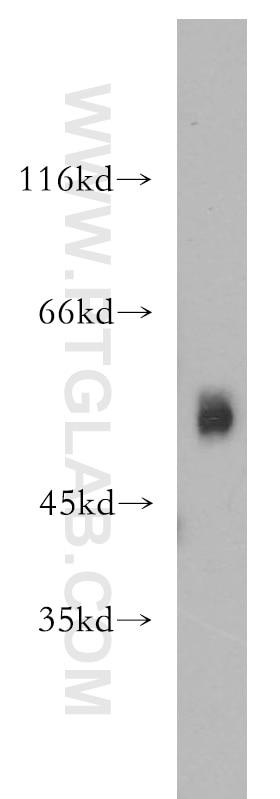 ST3GAL4 Polyclonal antibody