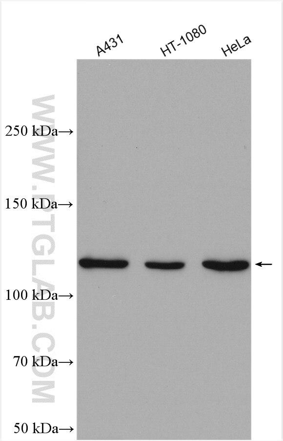 WB analysis using 16674-1-AP