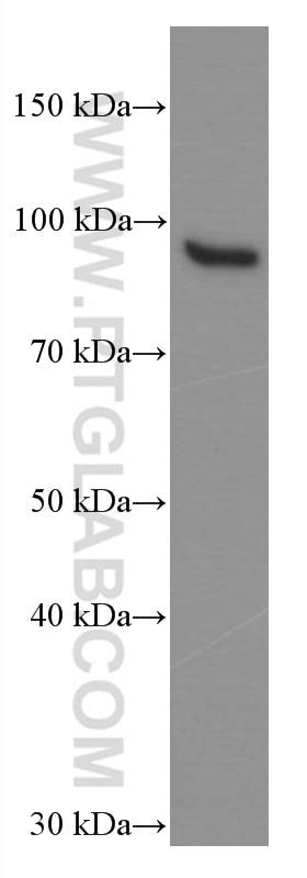 WB analysis of Jurkat using 66427-1-Ig