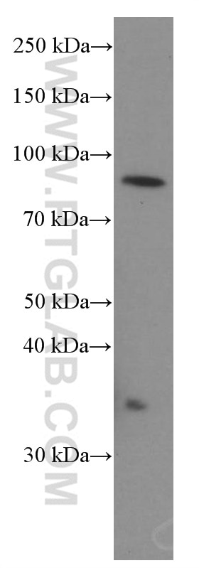 WB analysis of K-562 using 66189-1-Ig