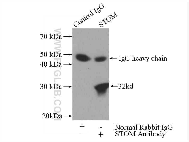 IP experiment of HeLa using 12046-1-AP