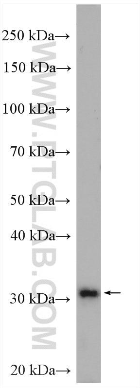 WB analysis of HeLa using 12046-1-AP
