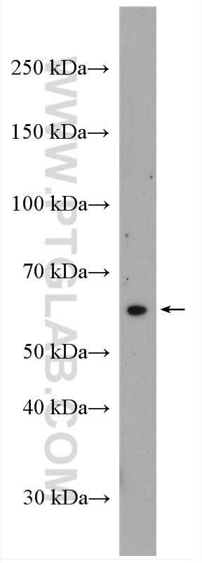 WB analysis of HepG2 using 12034-1-AP