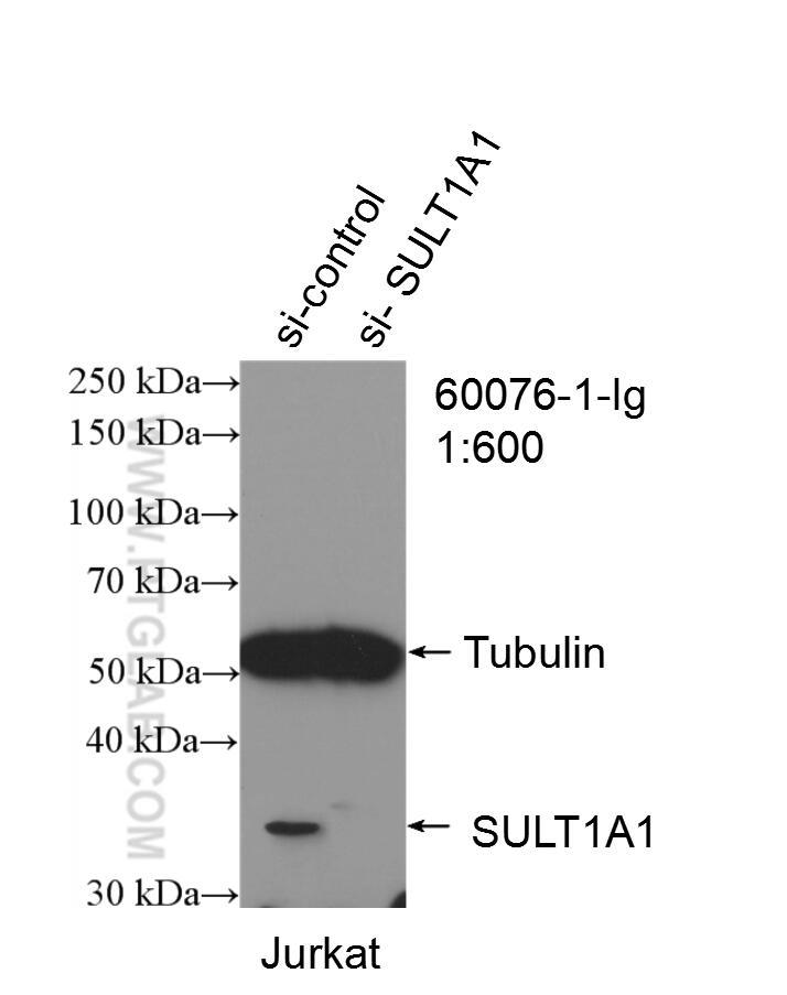 WB analysis of Jurkat using 60076-1-Ig
