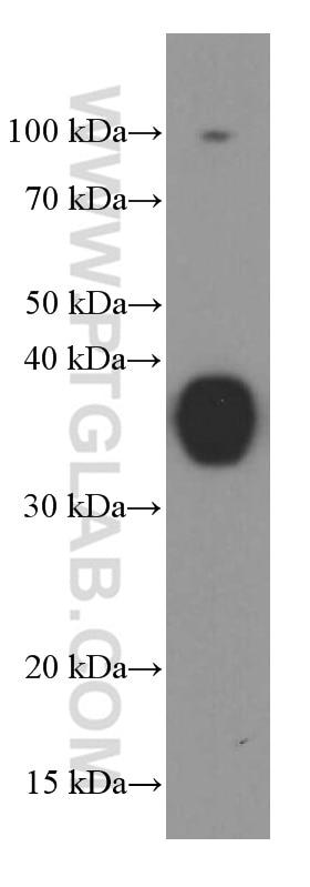 WB analysis of fetal human brain using 60191-1-Ig