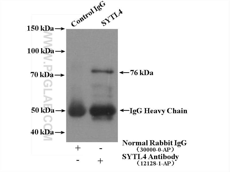 IP experiment of HEK-293 using 12128-1-AP