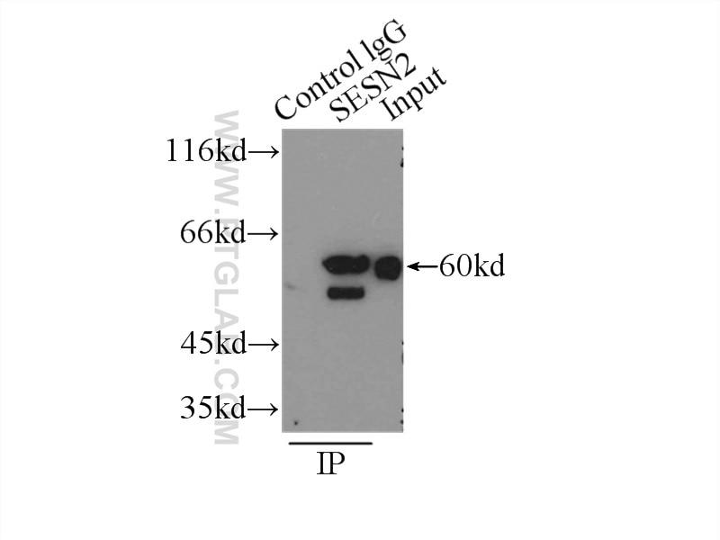 IP experiment of K-562 using 10795-1-AP