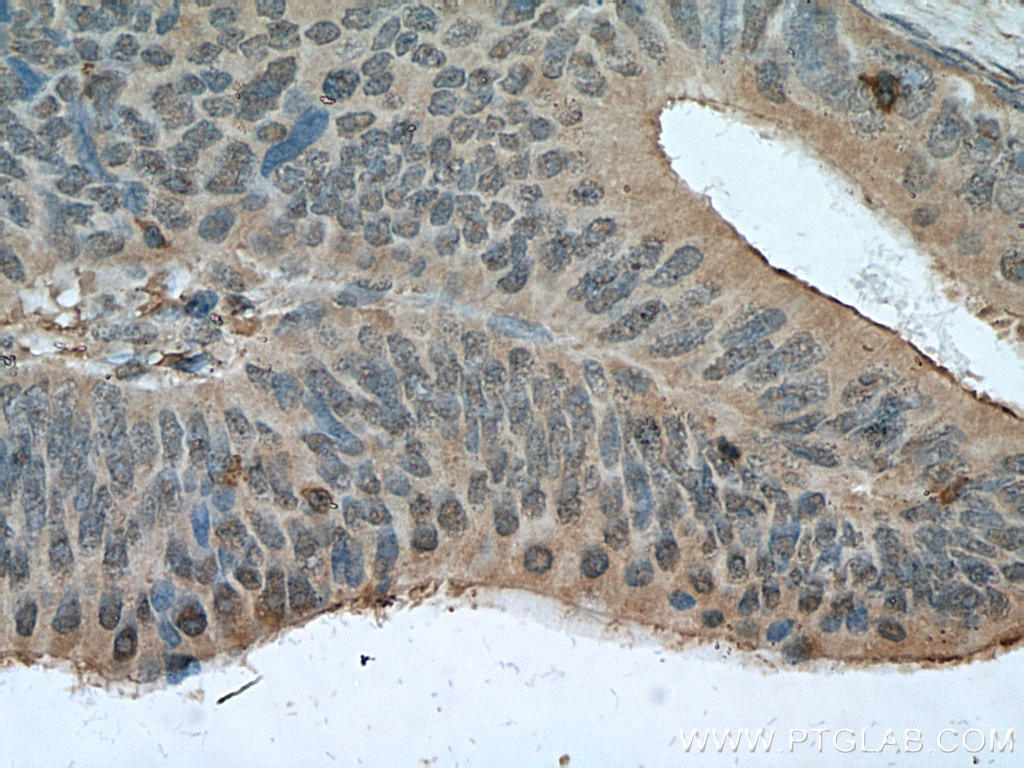 IHC staining of human colon cancer using 66297-1-Ig