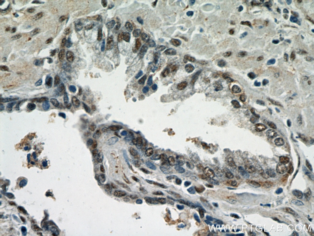 IHC staining of human prostate cancer using 20260-1-AP