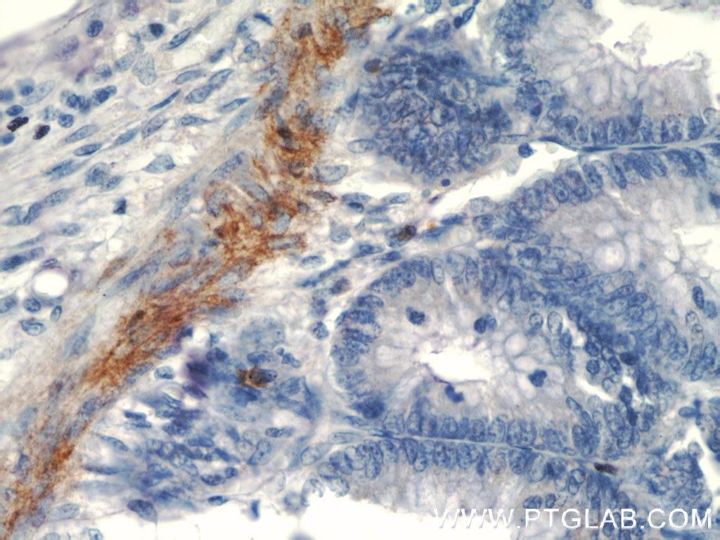 IHC staining of human colon using 60213-1-Ig