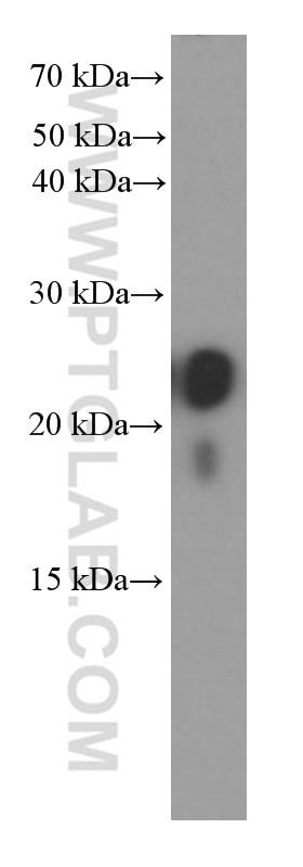 WB analysis of human colon using 60213-1-Ig