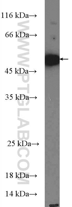 WB analysis of THP-1 using 27065-1-AP