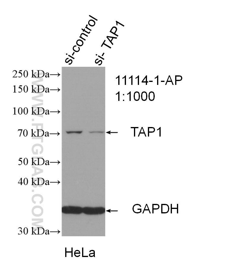 WB analysis of HeLa using 11114-1-AP