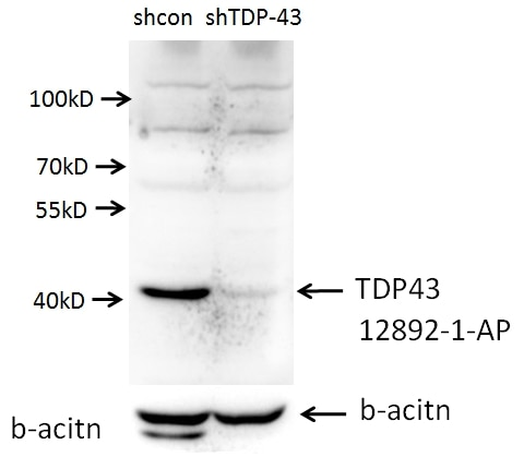 WB analysis of A549 cells using 12892-1-AP