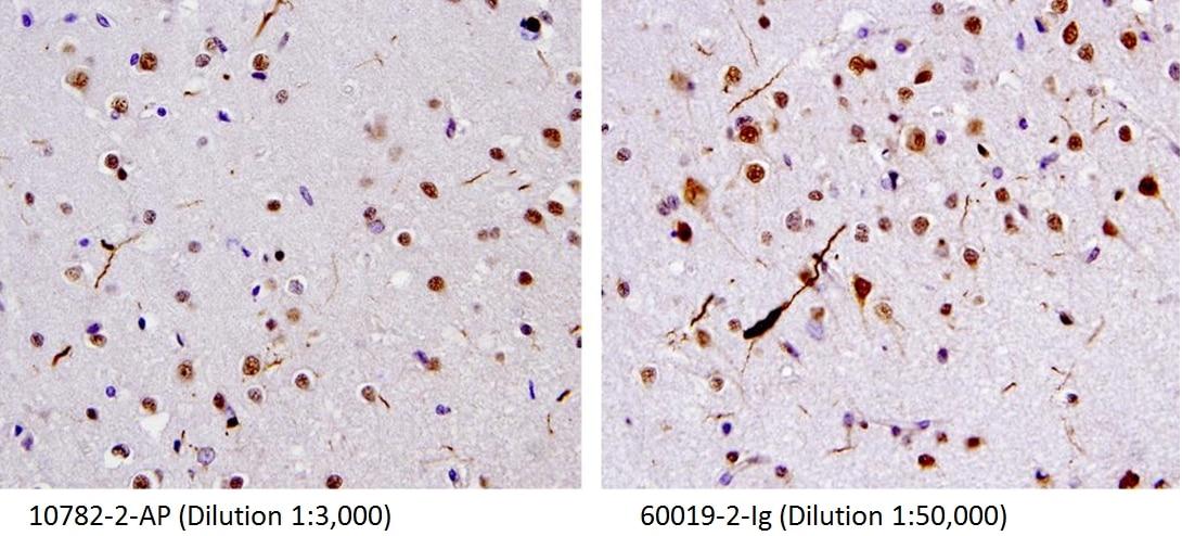 IHC staining of human brain(FTLD-U) tissue using 60019-2-Ig
