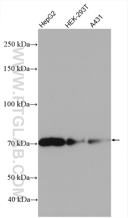 TBC1D15 Antibody 17252-1-AP | Proteintech