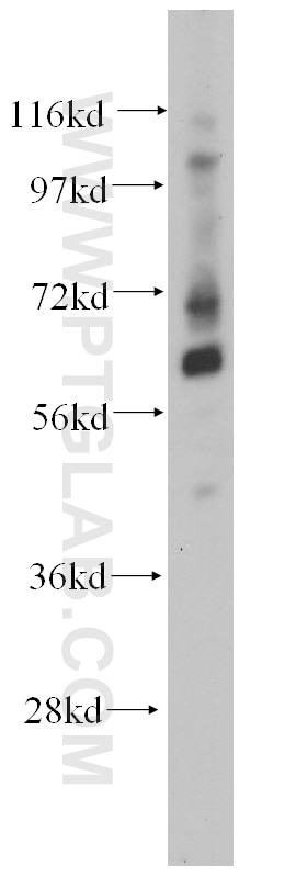 mouse brain tissue were subjected to SDS PAGE followed by western blot with  14519-1-AP(TCF7L1 antibody) at dilution of 1:300 incubated at room  temperature ...