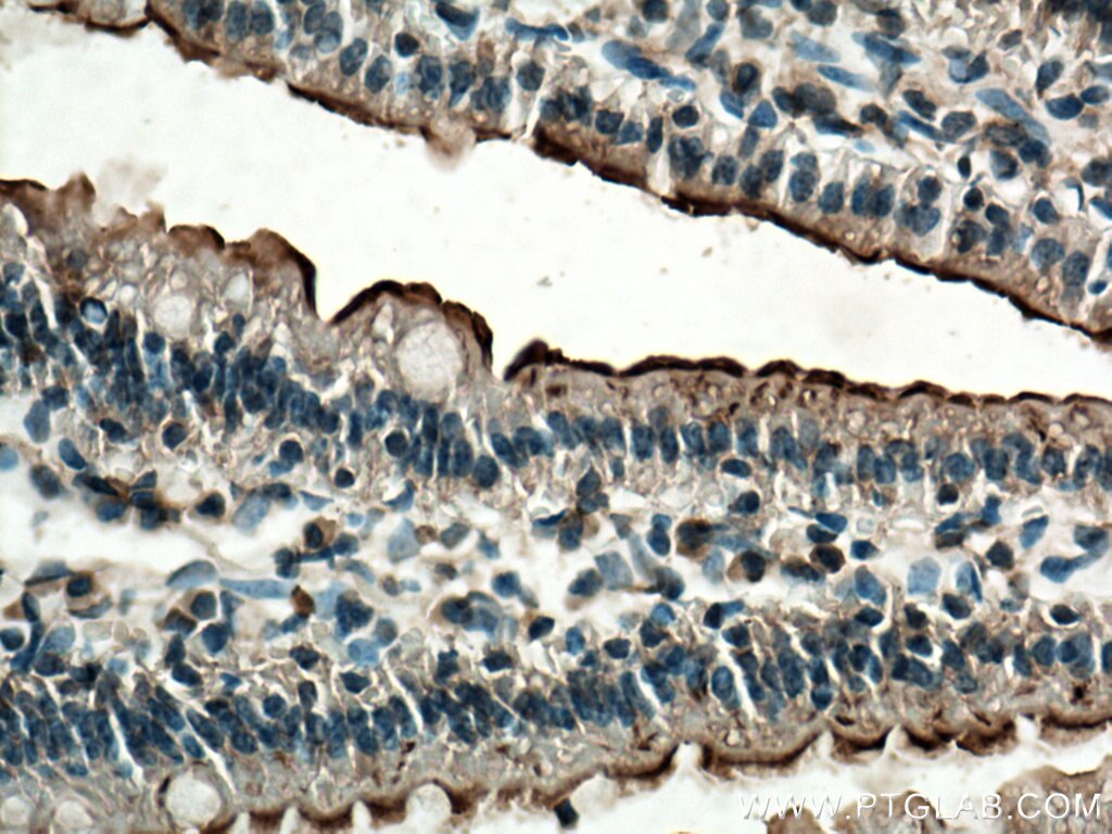 IHC staining of mouse small intestine using 12157-1-AP