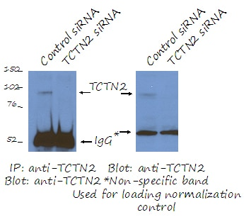 IP experiment of RPE1 cells(siRNA) using 17053-1-AP