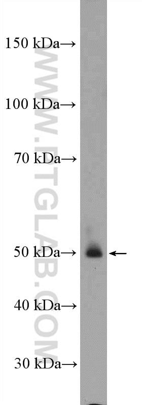 WB analysis of rat liver using 15880-1-AP