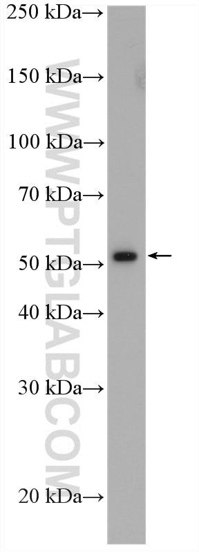WB analysis of BGC-823 using 13283-1-AP
