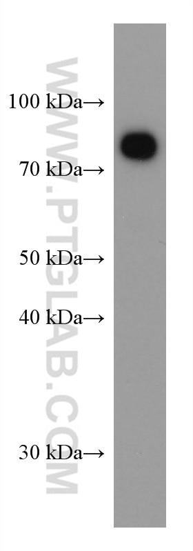 WB analysis of human plasma using 66171-1-Ig