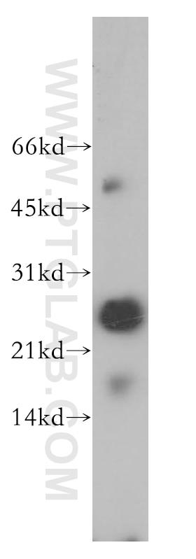 12584-1-AP;A375 cells