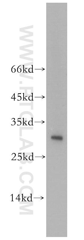 12584-1-AP;HEK-293 cells