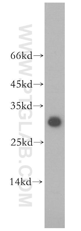 12584-1-AP;HeLa cells