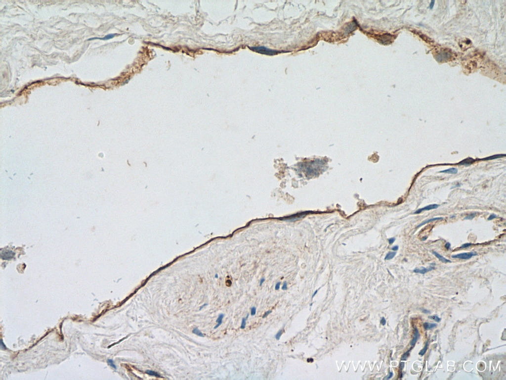 IHC staining of human heart using 14318-1-AP