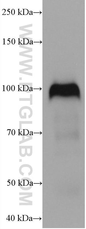 WB analysis of human placenta using 67831-1-Ig