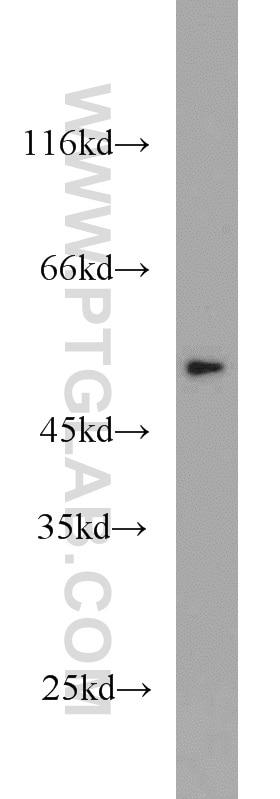 WB analysis of A431 using 10139-1-AP