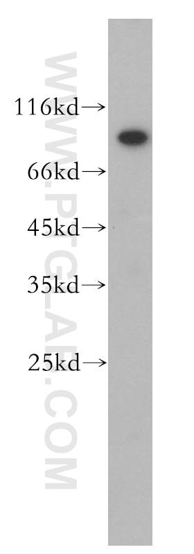 WB analysis of HeLa using 13644-1-AP