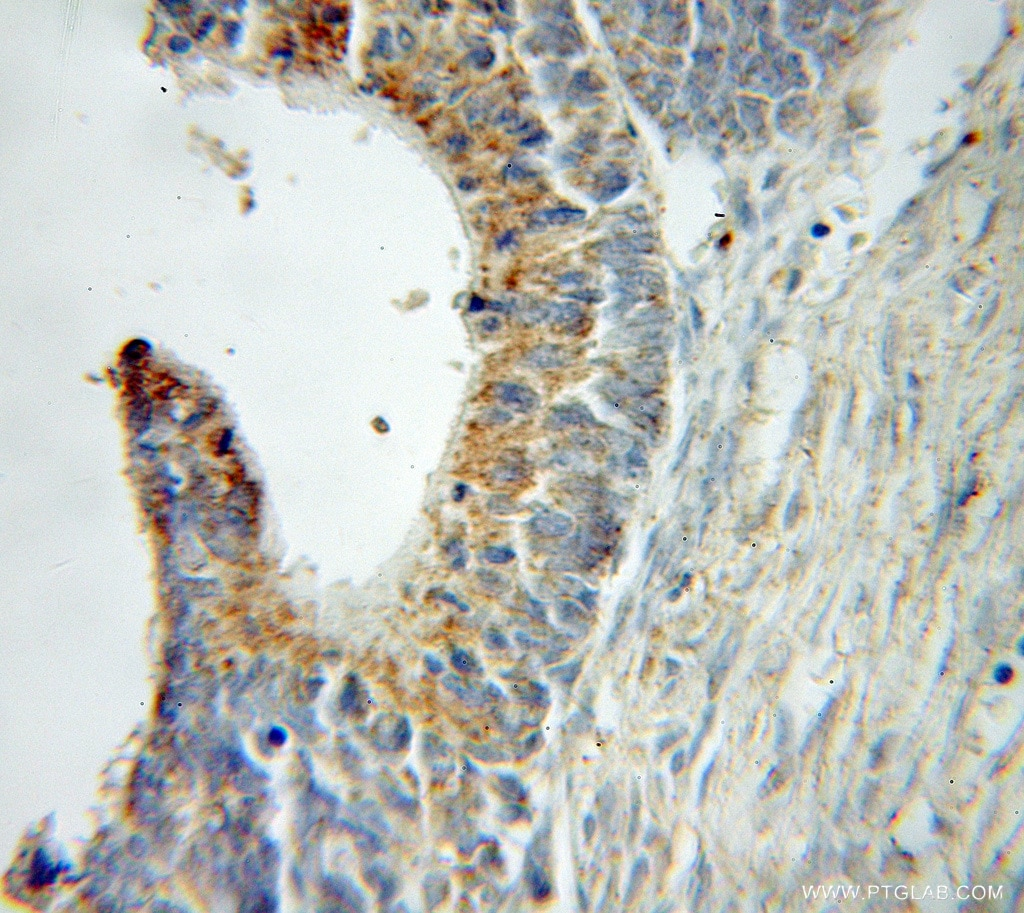 IHC staining of human ovary tumor using 11123-1-AP