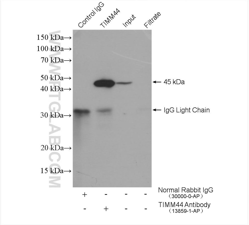 IP experiment of HeLa using 13859-1-AP