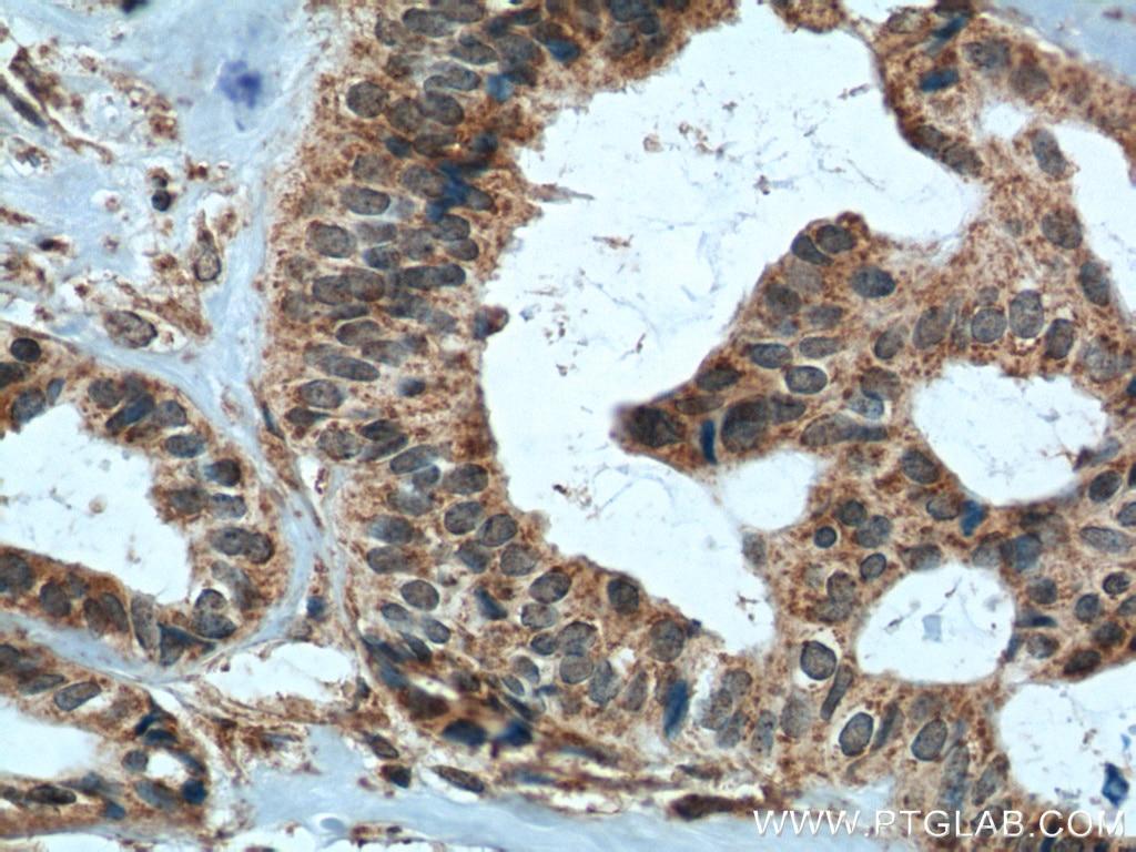 TIMP1 Polyclonal antibody