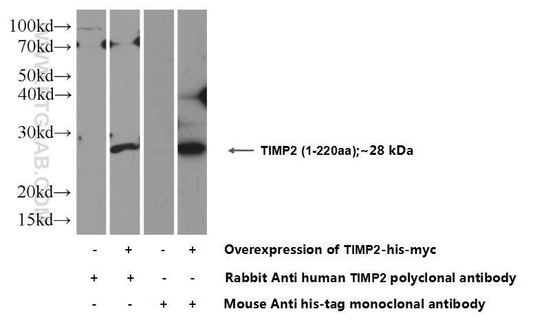 TIMP2 Polyclonal antibody