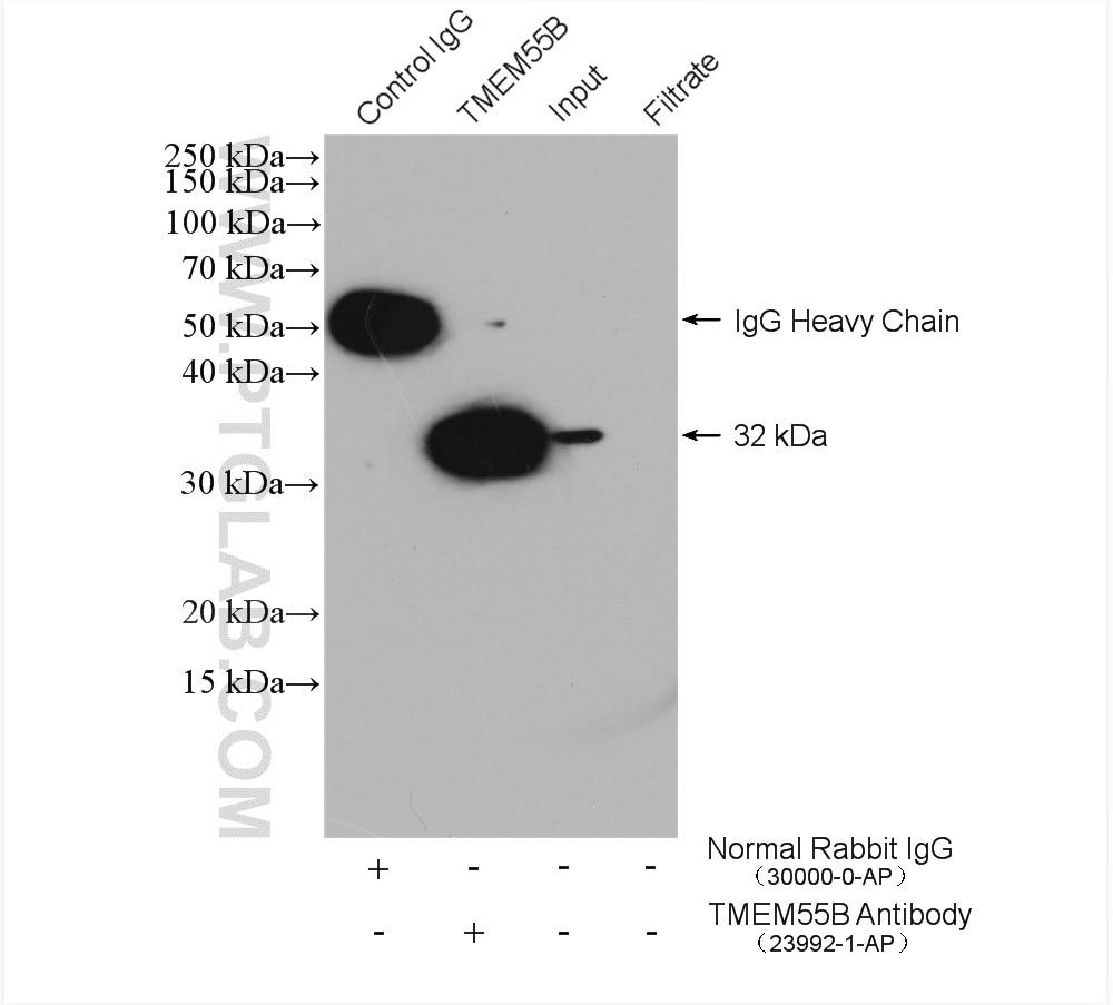 IP experiment of HeLa using 23992-1-AP