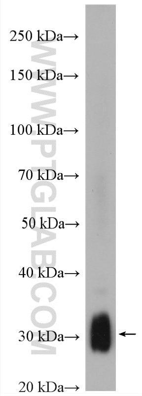 WB analysis of MCF-7 using 23992-1-AP